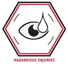 Team-Group-Hazardous-Injuries-Eyes